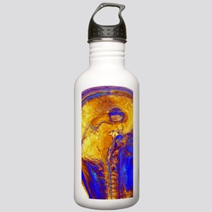 Brain tumour, 3-D MRI  Stainless Water Bottle 1.0L