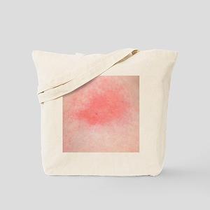 Bee sting Tote Bag
