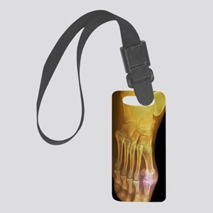 'Gouty foot, X-ray' Small Luggage Tag
