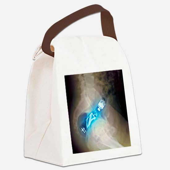 'Electric toothbrush in the rectu Canvas Lunch Bag