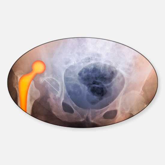'Dislocated hip prosthesis, X-ray' Sticker (Oval)