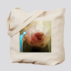 'Dislocated hip prosthesis, X-ray' Tote Bag