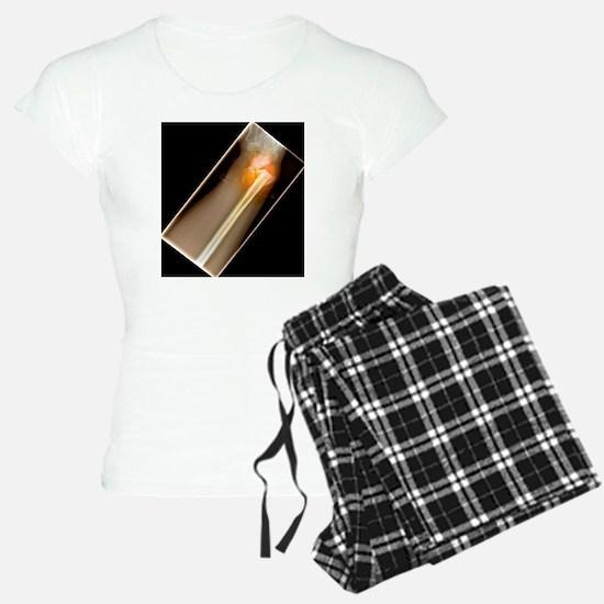 Broken wrist, X-ray Pajamas