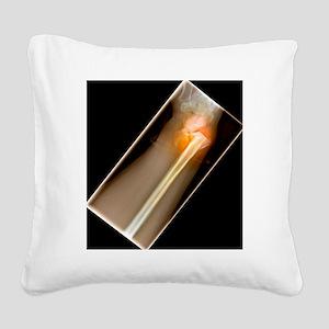 Broken wrist, X-ray Square Canvas Pillow
