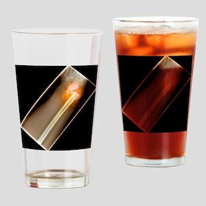 Broken wrist, X-ray Drinking Glass