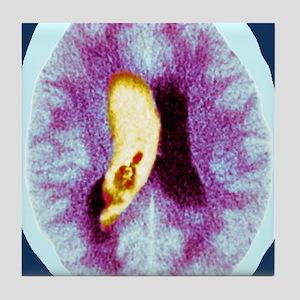 Brain haemorrhage, CT scan Tile Coaster