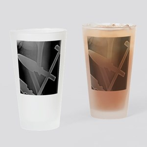 'Complete thigh-bone fracture, X-ra Drinking Glass