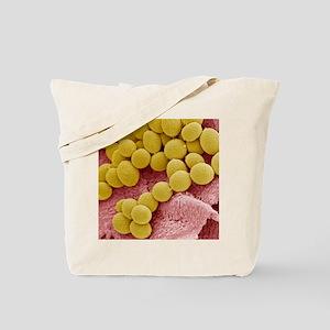 Athlete's foot fungus, SEM Tote Bag