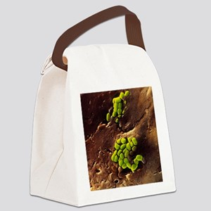 Bacteria on cooked roast beef Canvas Lunch Bag
