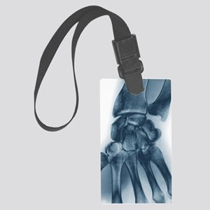 Normal wrist, X-ray Large Luggage Tag