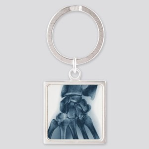 Normal wrist, X-ray Square Keychain