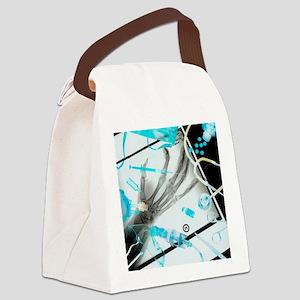 Medical treatment, conceptual ima Canvas Lunch Bag