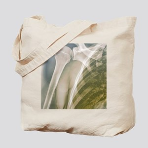 Normal shoulder, X-ray Tote Bag
