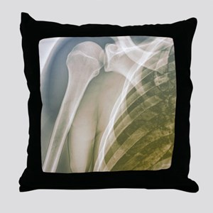 Normal shoulder, X-ray Throw Pillow