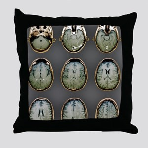 Normal brain, MRI scans Throw Pillow