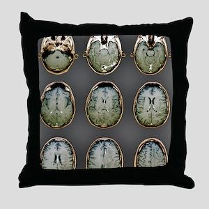Normal brain, MRI scans Throw Pillow