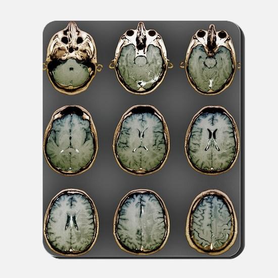 Normal brain, MRI scans Mousepad