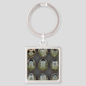 Normal brain, MRI scans Square Keychain
