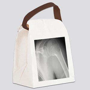 Broken shoulder, X-ray Canvas Lunch Bag