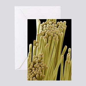 Toothbrush bristles, SEM Greeting Card