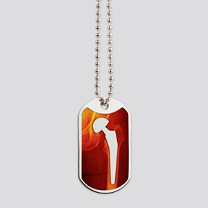 Total hip replacement, X-ray Dog Tags