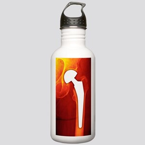 Total hip replacement, Stainless Water Bottle 1.0L