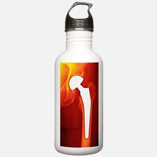 Total hip replacement, Water Bottle