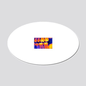 Teeth with fillings, X-ray 20x12 Oval Wall Decal