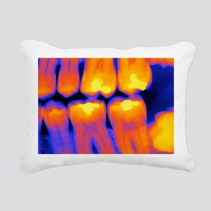 Teeth with fillings, X-r Rectangular Canvas Pillow