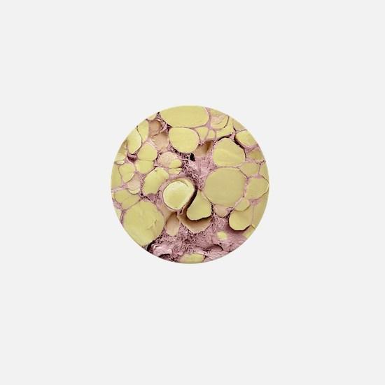 Thyroid gland, SEM Mini Button
