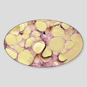 Thyroid gland, SEM Sticker (Oval)