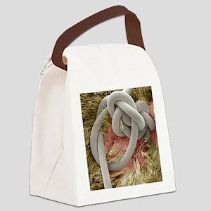 Sutured wound, SEM Canvas Lunch Bag