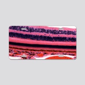Retina, light micrograph Aluminum License Plate