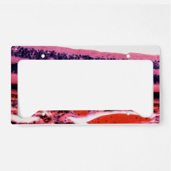 Retina, light micrograph License Plate Holder