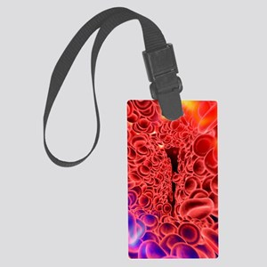 Red blood cells, computer artwor Large Luggage Tag