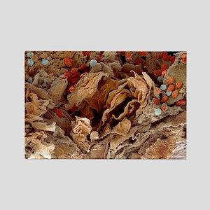 Pyoderma skin disease, SEM Rectangle Magnet
