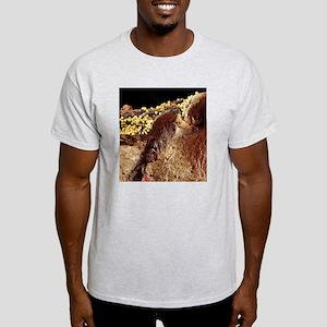 Pyoderma skin disease, SEM Light T-Shirt