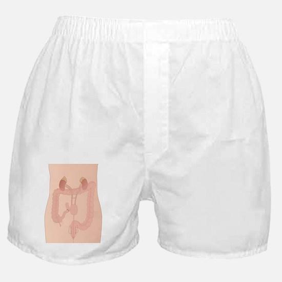 Urostomy procedure, artwork Boxer Shorts