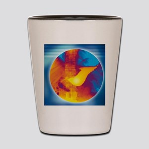 Normal stomach, X-ray Shot Glass