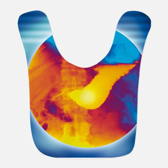 Normal stomach, X-ray Bib