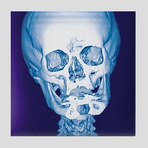 Normal skull, X-ray Tile Coaster