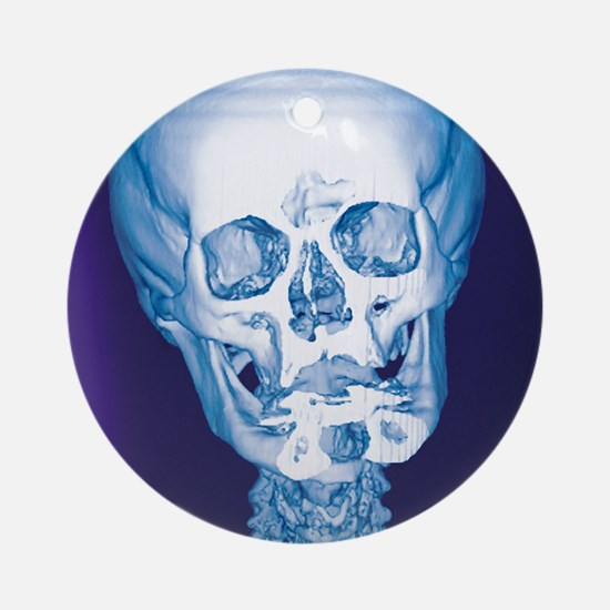 Normal skull, X-ray Round Ornament