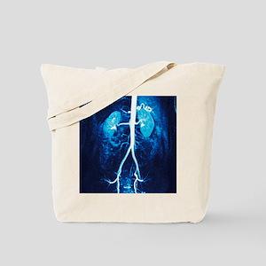 Normal renal arteries, MRA scan Tote Bag