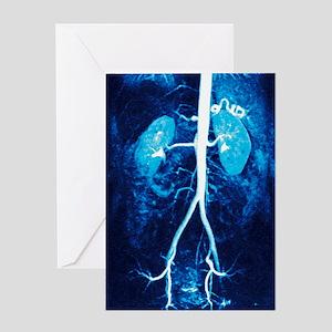 Normal renal arteries, MRA scan Greeting Card