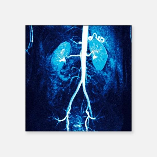 "Normal renal arteries, MRA  Square Sticker 3"" x 3"""