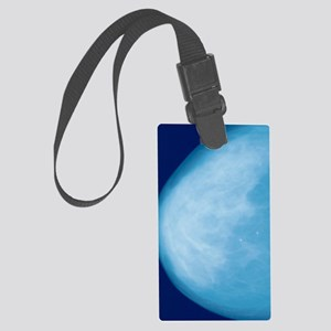 Normal breast, X-ray Large Luggage Tag