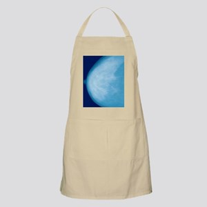Normal breast, X-ray Apron