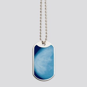 Normal breast, X-ray Dog Tags