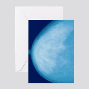 Normal breast, X-ray Greeting Card