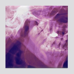 Normal lower jaw, X-ray Tile Coaster